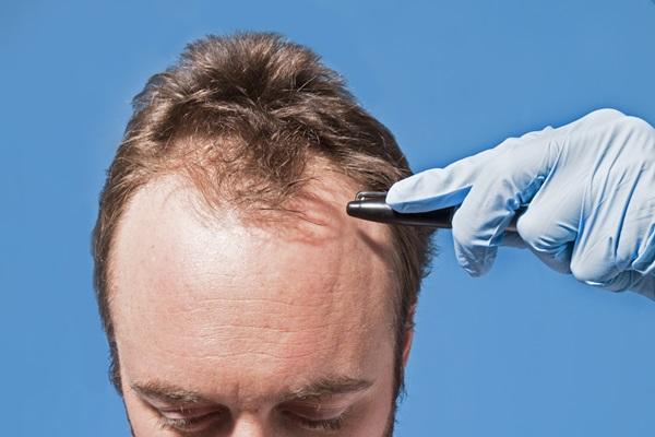 Erkeklerde Saç sorunları
